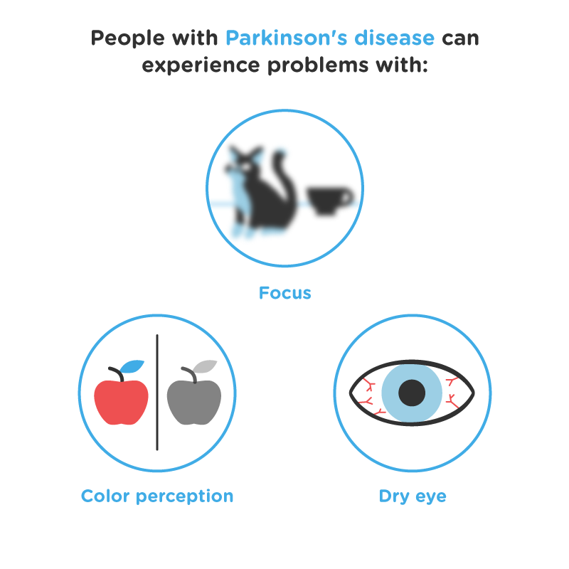 parkinson's disease asset
