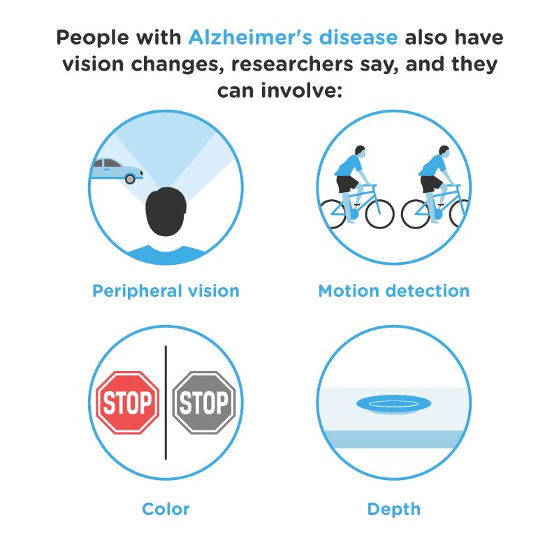 alzheimer's disease asset