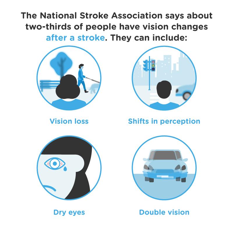 stroke asset