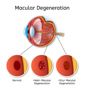Macular Degeneration Causes Symptoms And Treatment Nvision Eye Centers
