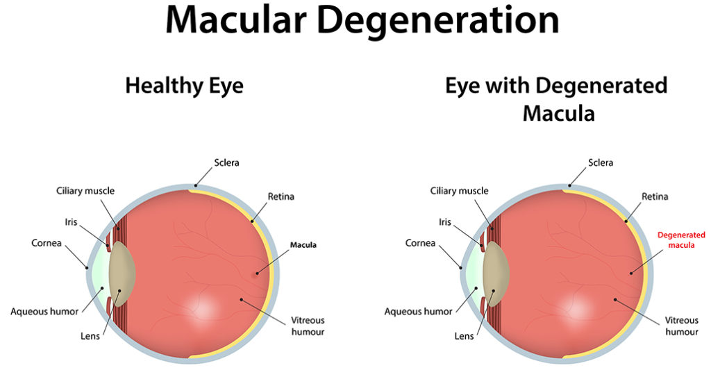 diagram comparing two afflicted eyes