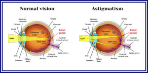 astigmatism vs normal vision graphic