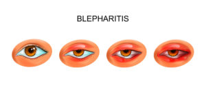 blepharitis progression