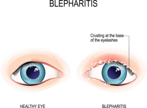 Swollen Eyelids? Causes & How to Fix Them (Fast) - NVISION