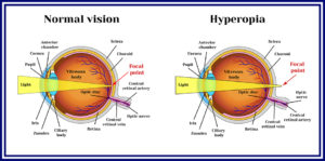 hyperopia vs. normal vision graphic