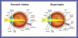 hyperopia diagnózis