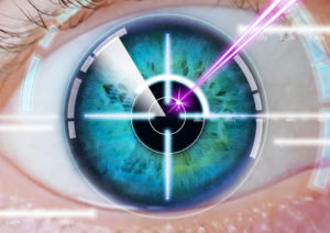 eye laser correction