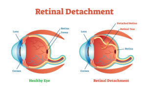 retinal detachment