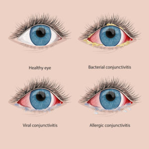 different types of conjunctivitis