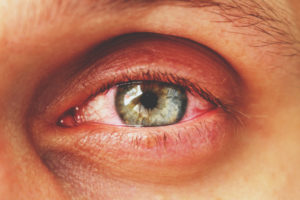 eye of person with conjunctivitis