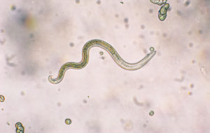 toxocariasis