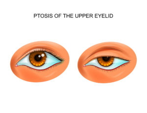 Guide to Ptosis: What Is It? (& How to Treat It) - NVISION