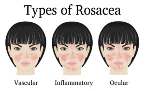 Guide To Ocular Rosacea Treatment And More Nvision Eye Centers