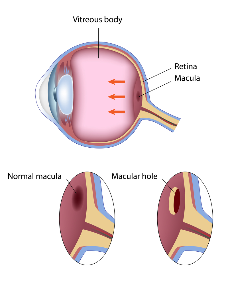 macular hole diagram