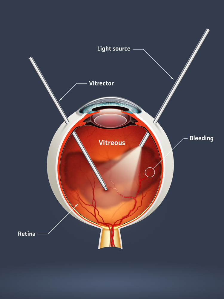 A vitrectomy is a ty...