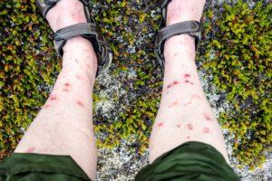 blackfly bites
