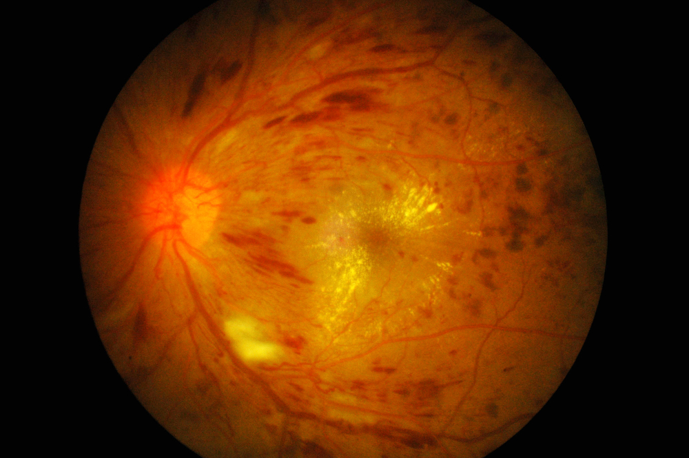 Diabetic macular ede...