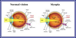 myopia graphic