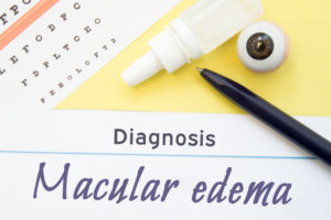 text reading macular edema
