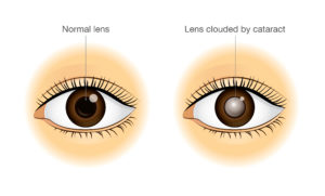 eye with and without cataracts