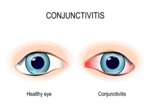 healthy vs conjunctivitis