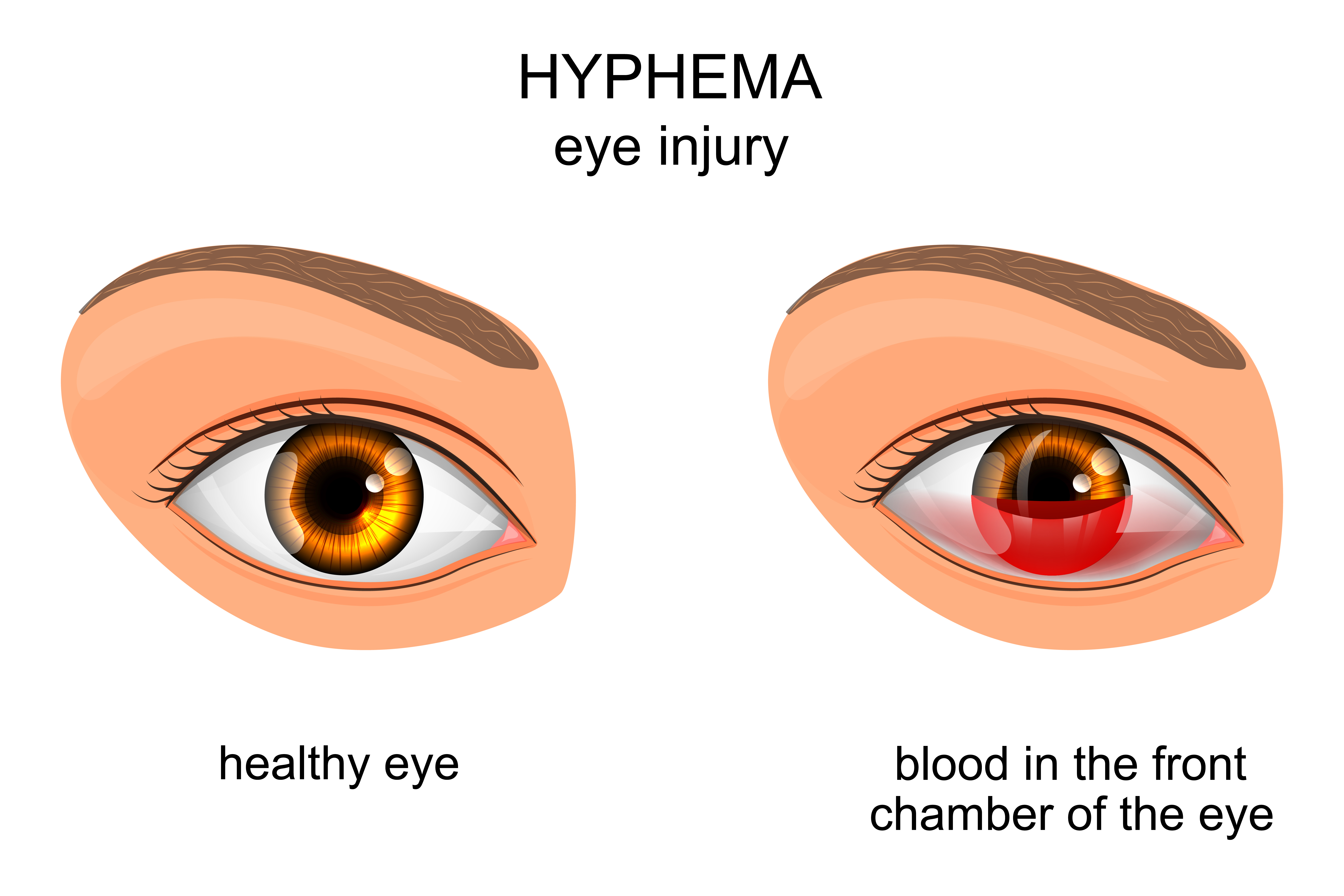 A hyphema is charact...