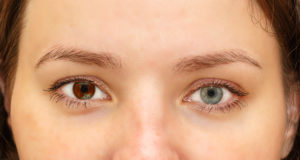 woman with heterochromia
