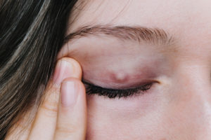 How to Definitively Get Rid of a Stye (Safe Treatment) - NVISION
