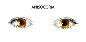 anisocoria a condition of uneven tag