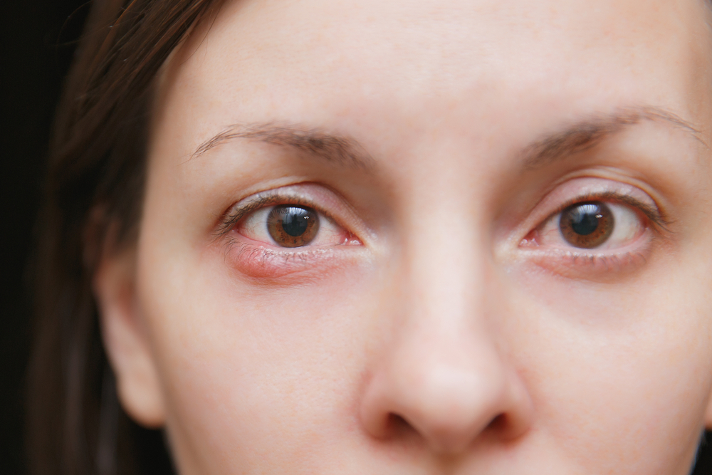 Styes are usually th...