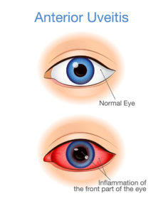 Healthy eye vs. Uveitis